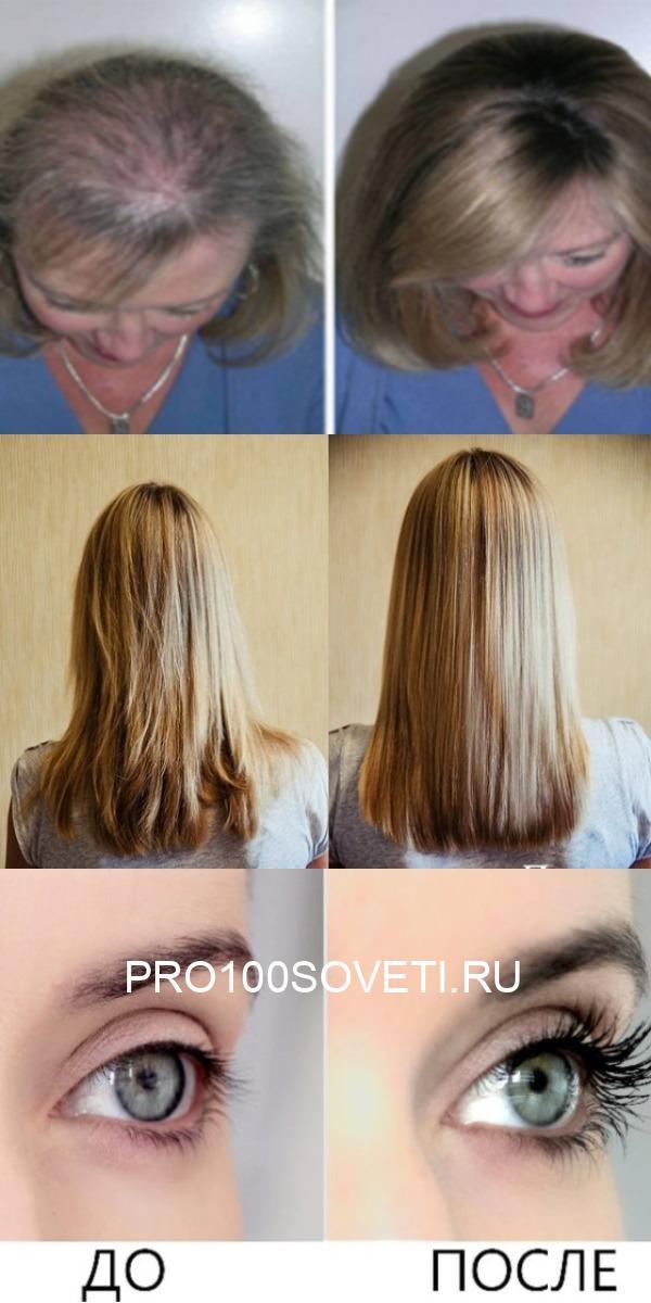 Это масло удивительно для роста волос, ресниц и бровей