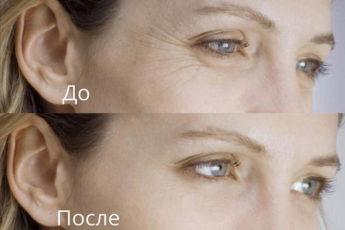 Сливочное масло и манка: мощный удар по вееру морщин + увлажнение