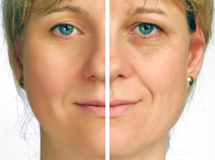 correction-of-wrinkles-on-half-of-face