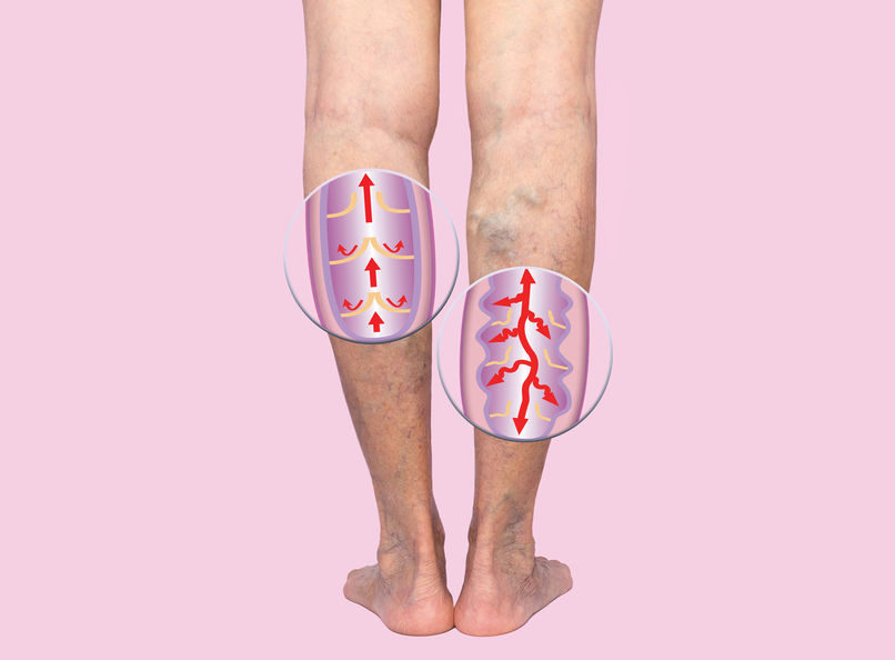 varicose-veins-on-a-female-senior-legs-the-structure-of-normal-and-varicose-veins