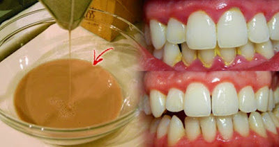effective-homemade-mouthwash-that-removes-plaque-in-just-2-minutes-9685431