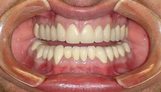 koronki-na-perednie-zuby-foto-cena-4539017