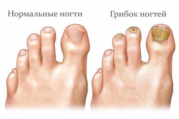 lechenie-gribka-nogtey-1-8694688