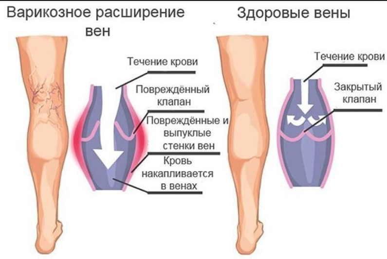 varikoz-1-8732675
